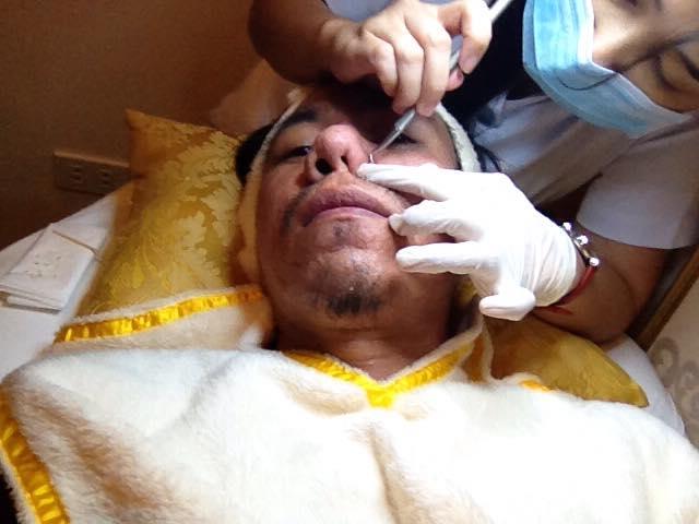 Pricking in Derma