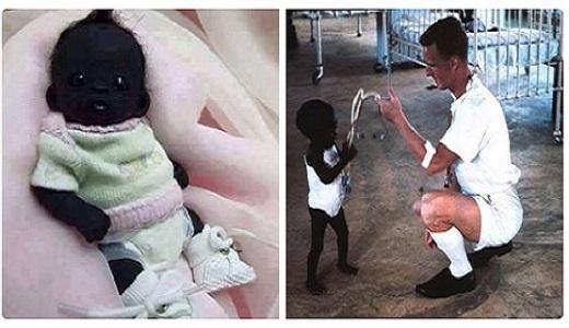 Photo of World's Darkest Baby