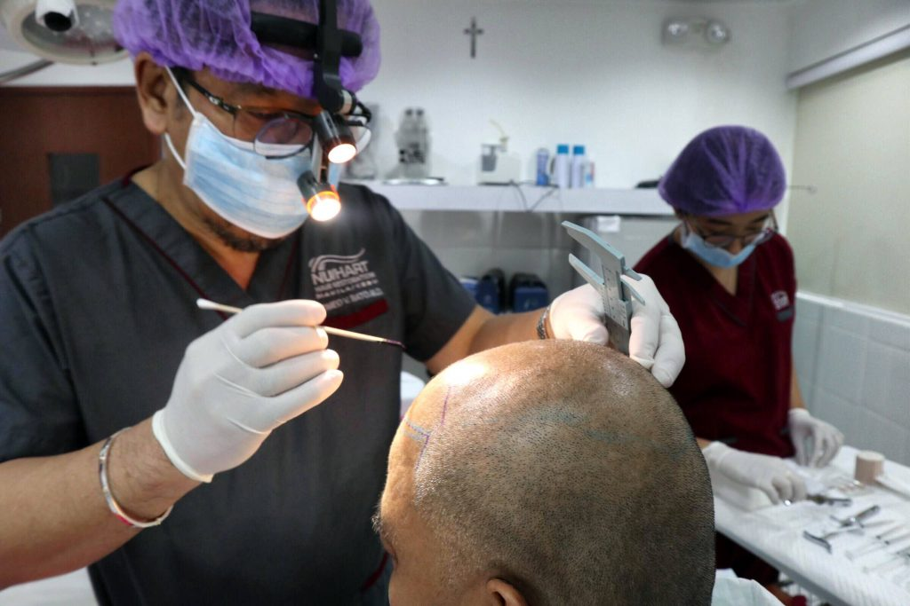 Image result for hair transplant solutions